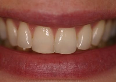 after teeth whitening at Rathmines Dental