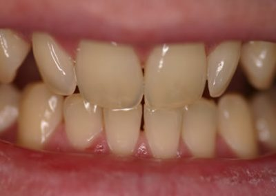lower teeth whitened to match top