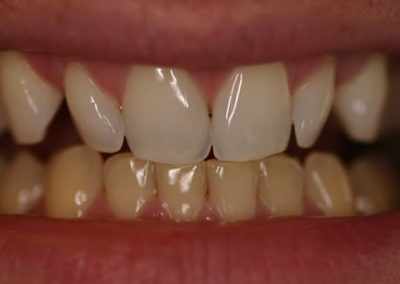 top teeth whitened first