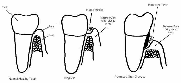 diagram showing dingivitis and advanced gum disease